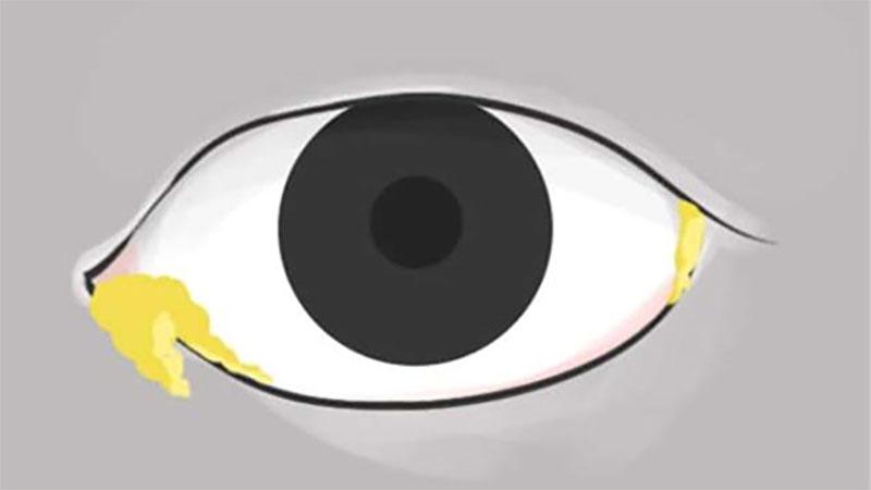 眼睛是「靈魂之窗」,可不能輕忽了這10個症狀,花一分鐘好好檢查一下自己的眼睛吧!/