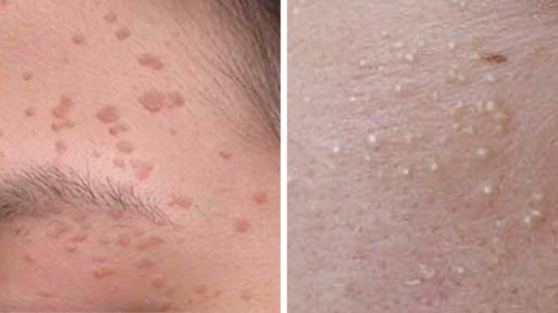 ✏ 臉上的肉芽會傳染傳染 小心扁平疣上臉