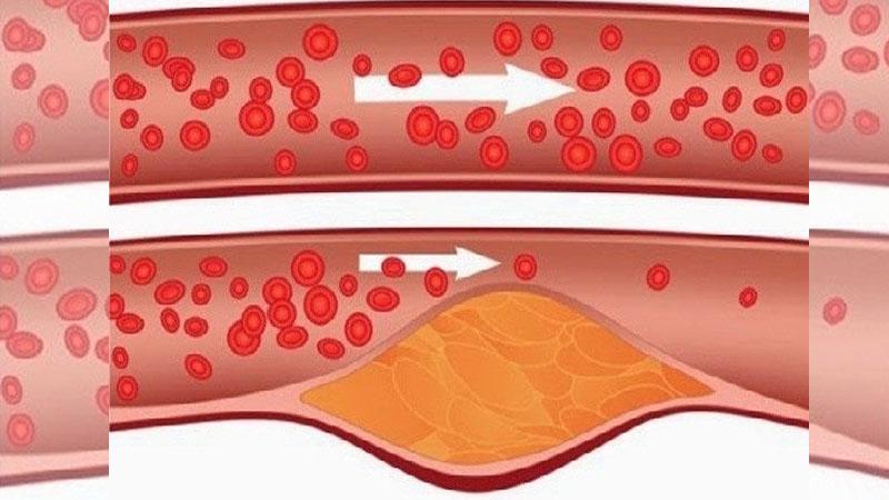 早上空腹喝4湯匙把你的血管刷得乾乾淨淨,趕走「高血壓」、「膽固醇」一定要轉給爸媽!
